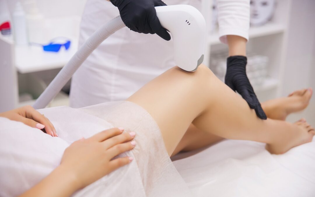10 motive să încerci epilarea definitivă cu Laser Diodă