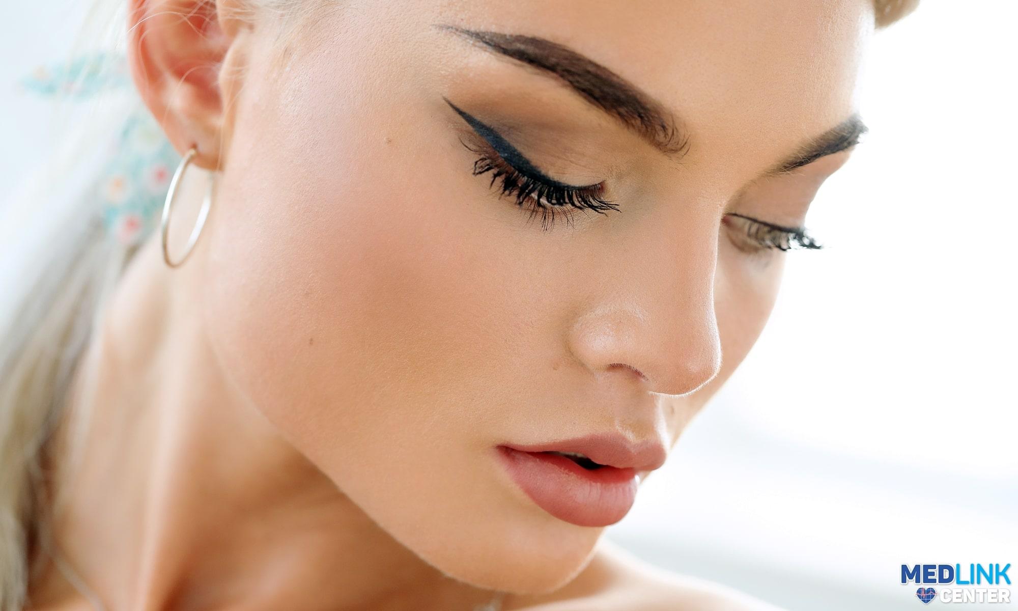 marire buze tratament riduri fine botox medlink clinica privata craiova