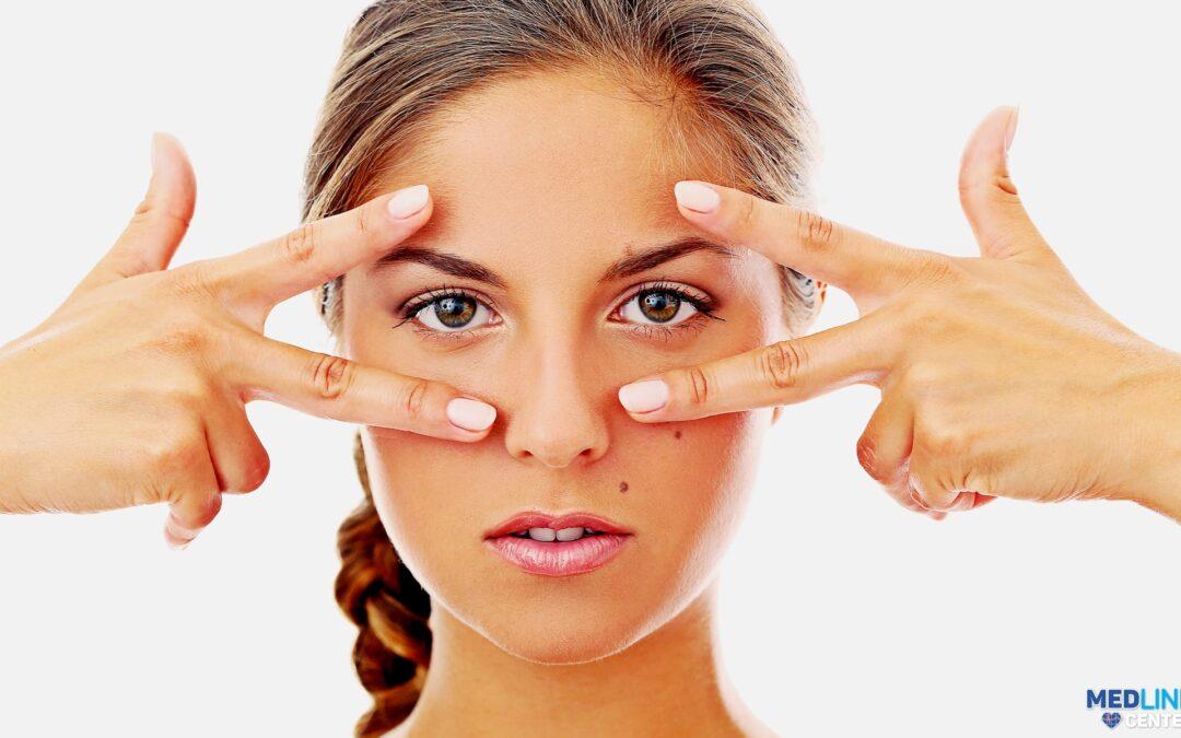 Există tratament Botox pentru ridurile laba gâștii?