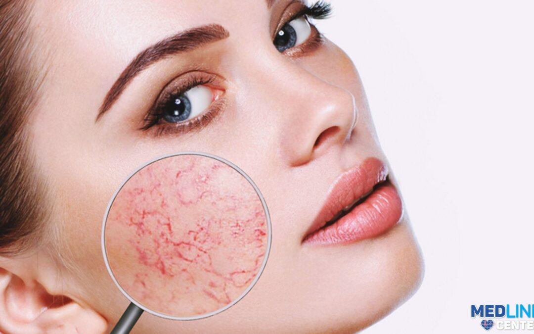 Rozaceea – cauze, manifestare și sfatul dermatologului