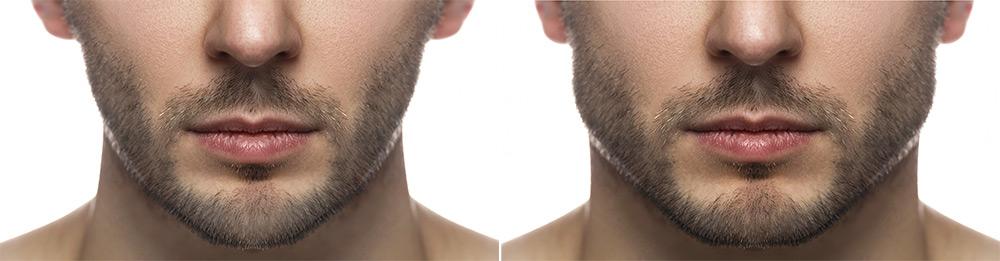 conturarea liniei maxilarului - inainte si dupa