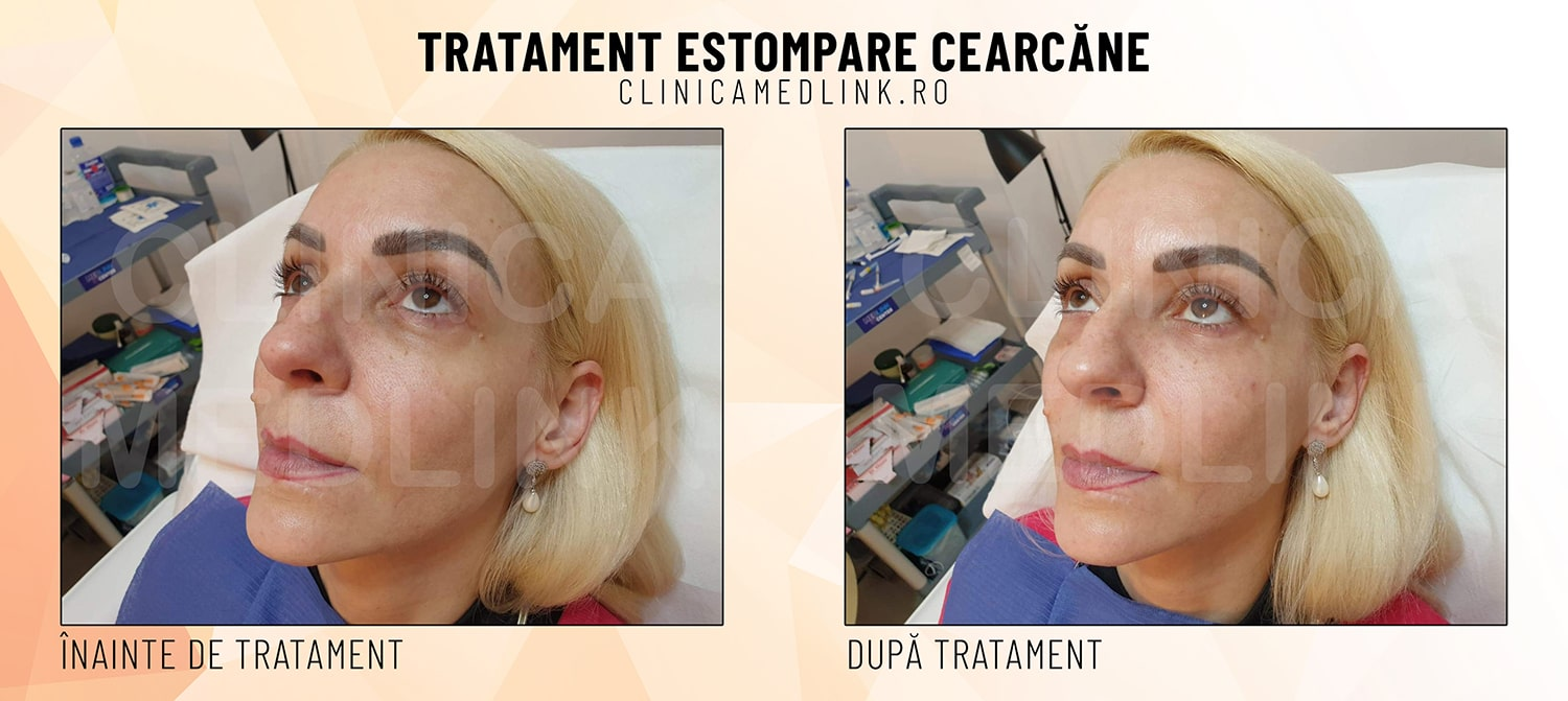 Before after cearcane clinica medlink