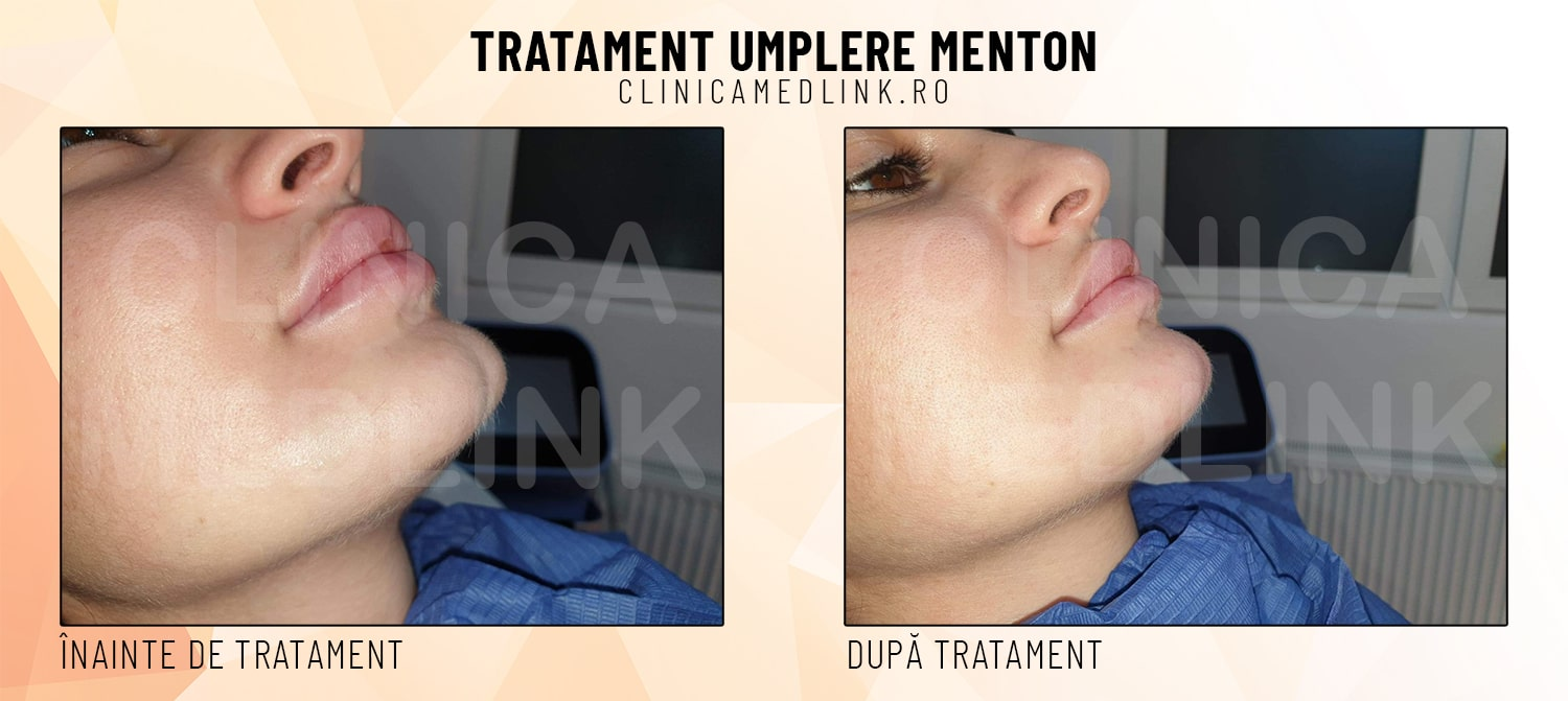 Before after umplere menton clinica medlink