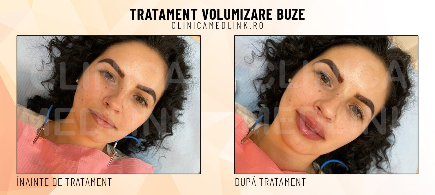 before after volumizare buze clinica medlink