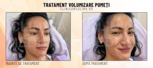 before after volumizare pometi clinica medlink