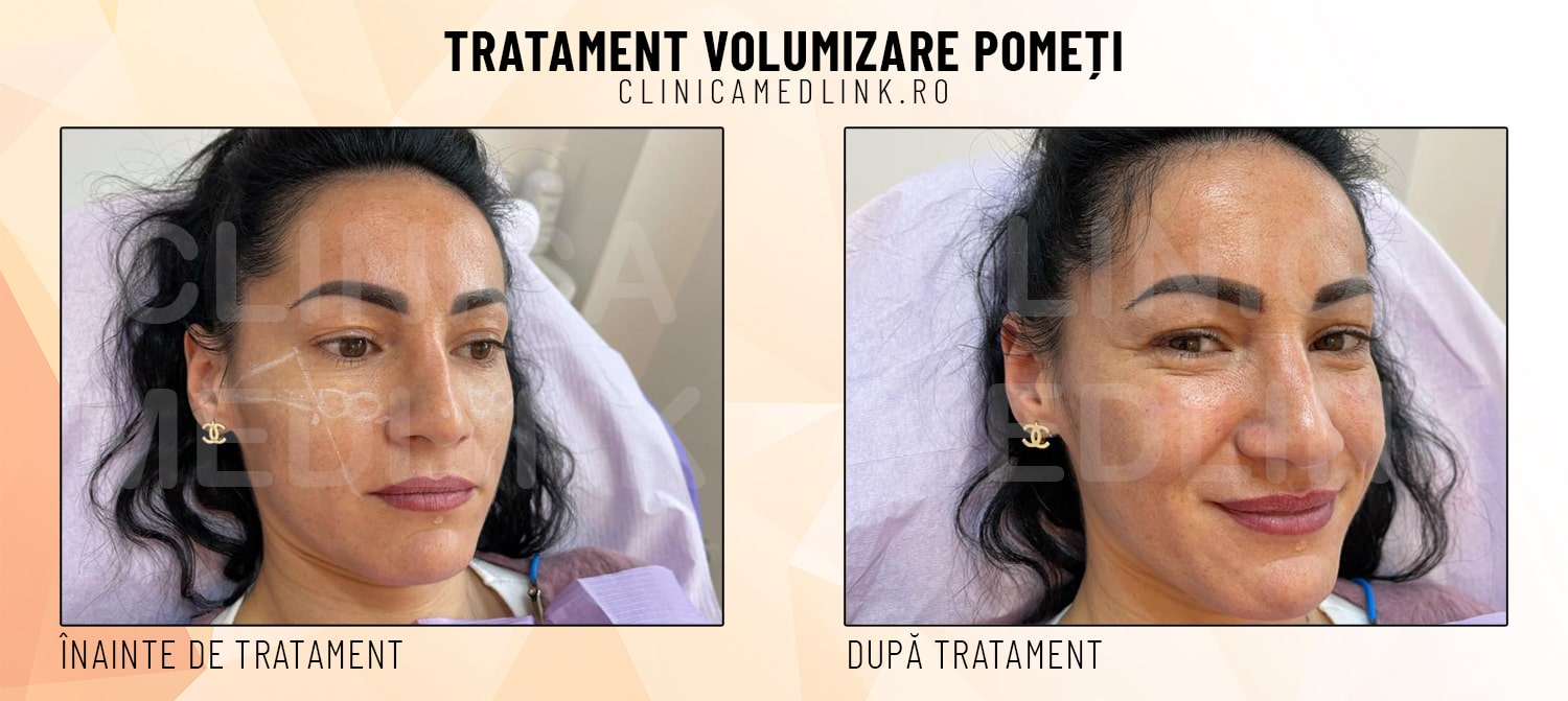before after volumizare pometi clinica medlink