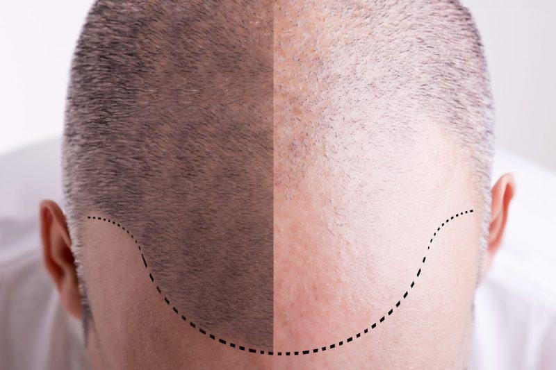 Analiza facială avansată