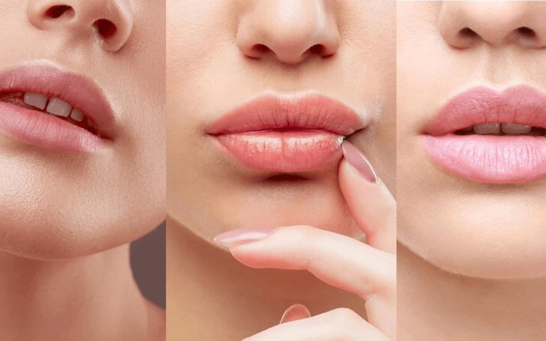 Ce formă de volumizare buze este cea mai populară?